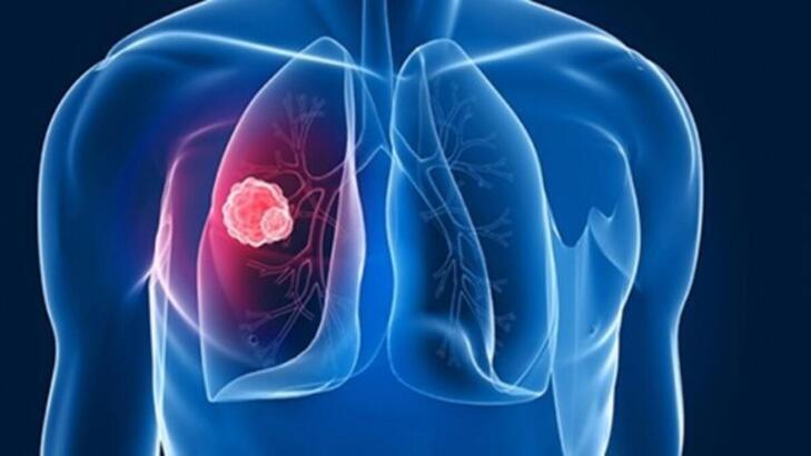Tüberküloz hastalığı nedir? Tüberküloz (verem) nasıl bulaşır, bulaşır mı?