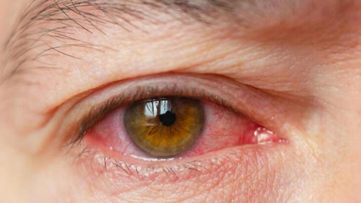 Görme bozukluğu ve göz hastalıkları beyin tümörü belirtileri arasında yer alır mı?