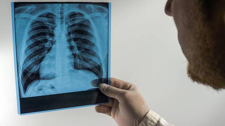 Akciğer kanserinde tarama yöntemleri neden bu kadar önemli?