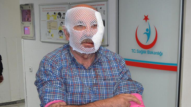 Son dakika... Aksaray'da köpekler saldırdı! Çocuklarını kurtardı, kendi yüzü parçalandı