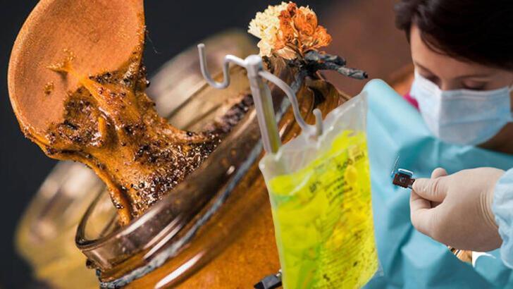 Kanser tedavisinde arı ürünleri ne işe yarar: Propolis ile zeytinyağına dikkat!