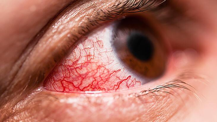 Gözdeki kızarıklık konjonktivit mi yoksa corona virüs mü?