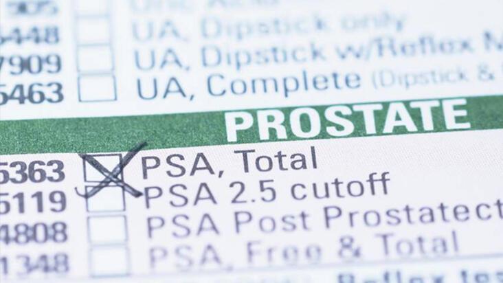 Erkeklerde PSA testi ne işe yarıyor? - PSA testi neden yapılır?