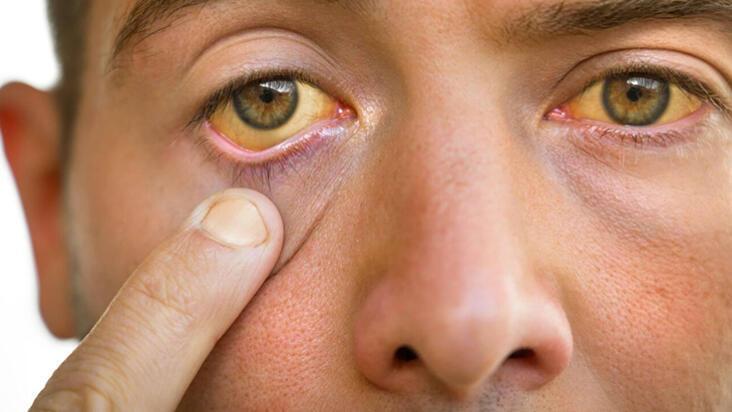 Gözlerde sararma hangi hastalıkların belirtisi olabilir?