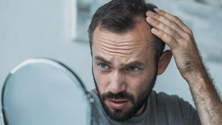 Tıraşsız saç ekimi artık mümkün!