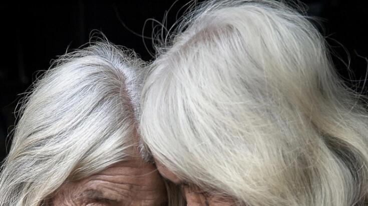 Beyaz Saç Nasıl Siyahlaşır? Beyazlamış Saçlar Nasıl Eski Haline Döner?