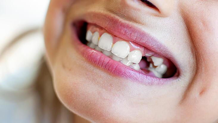 Diş travması yaşayan çocuklarda acil müdahale nasıl yapılır?