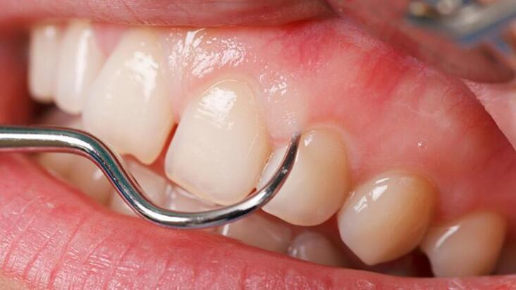 Diş eti hastalıkları kendini nasıl belli ediyor?