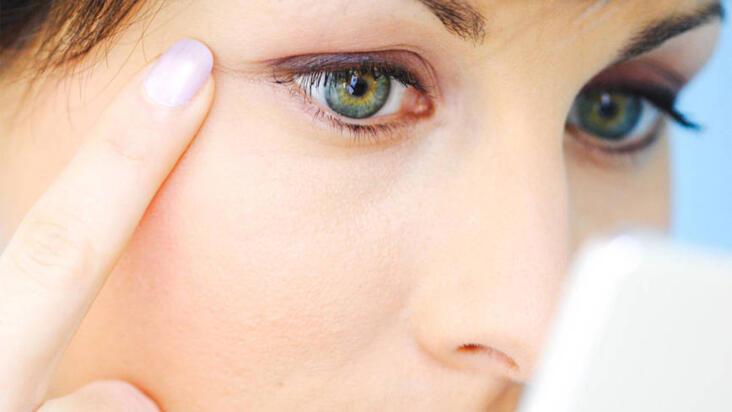Göz çevresi kırışıklıkları tedaviyle yok edilebilir mi?