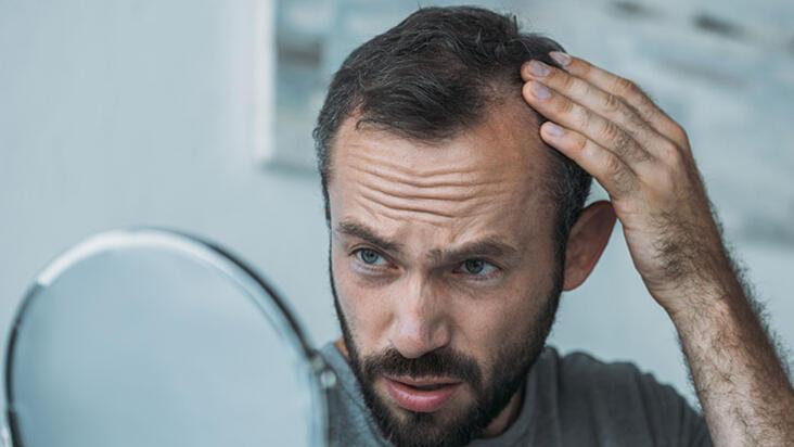 Saç ekimi yerine erkek tipi saç dökülmesinde etkili yöntemler