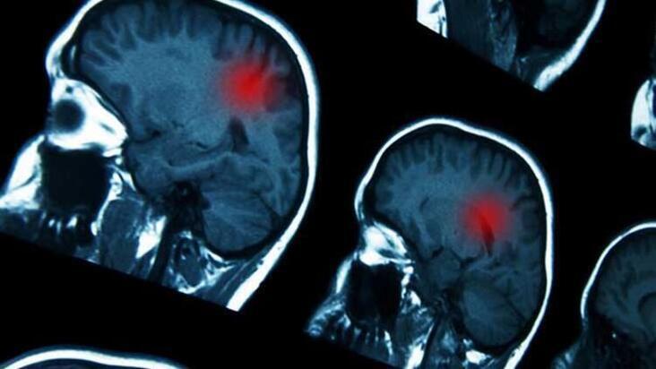 MS hastalığı hakkında doğru bilinen yanlışlar
