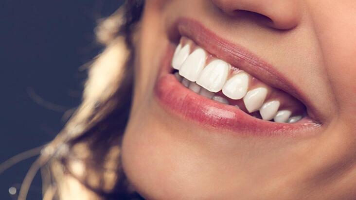 Diş estetiğinin ağız sağlığına faydaları