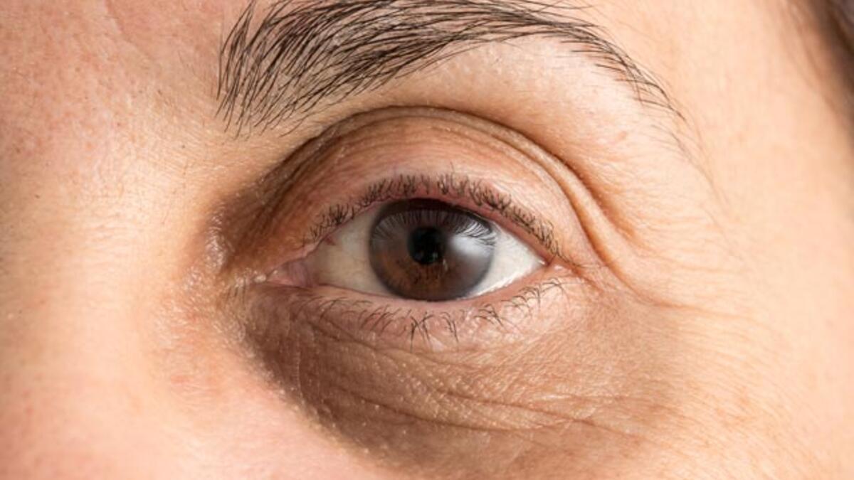 Göz çevresinde koyu halkalar neden oluşur? - Cilt Bakımı