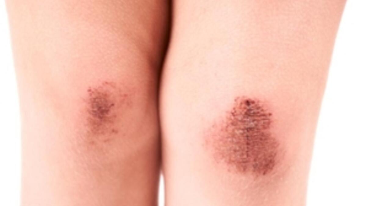 Bereler Ve Derinin Altinda Kan Benekleri Saglik Haberleri