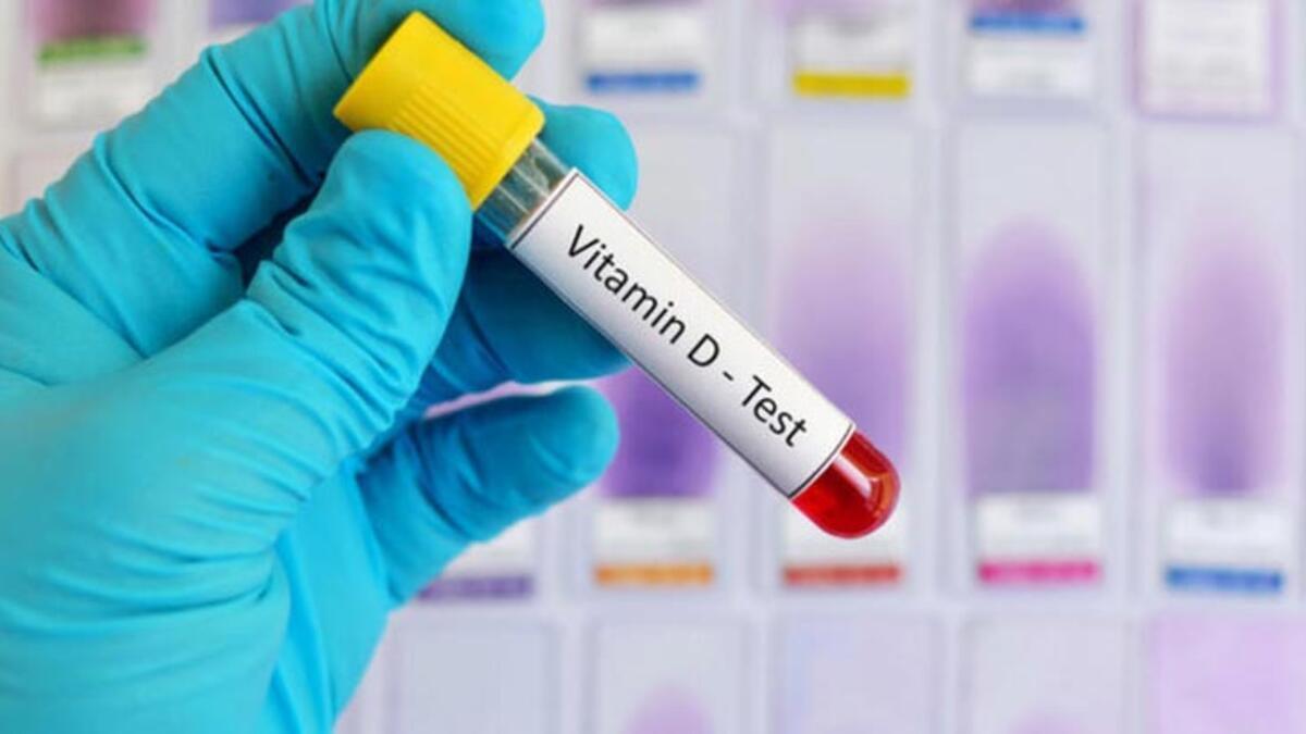 D Vitamini Nedir D Vitamini Kac Olmali Yuksekligi Ve Dusuklugu Nedenleri Saglik Haberleri