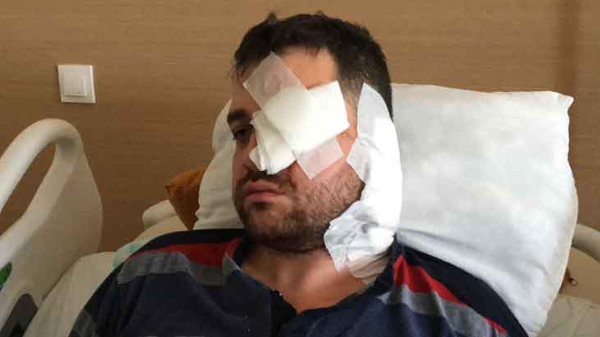 Avukatın sol gözünü kör eden saldırgan peruk takmış! - Haberler Milliyet