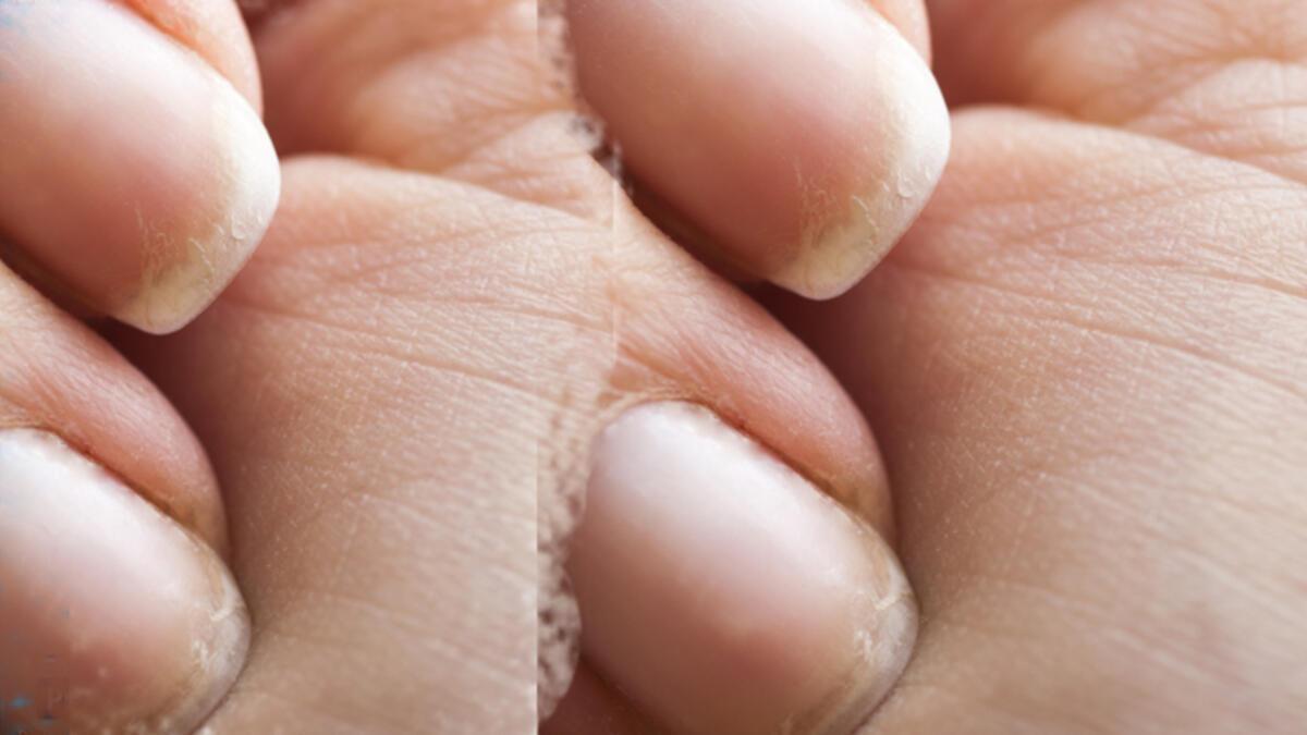 tirnaklar nasil kesilir el ve ayak