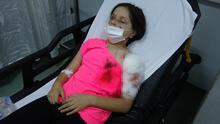 11 yaşındaki kıza pitbull saldırdı