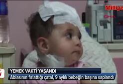 Ablasının fırlattığı çatal, bebeğin başına saplandı