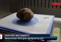 Mesanesinden 153,5 gramlık taş çıktı