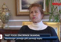 Hamburger yemeğe gitti parmağından oldu
