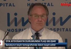Oya Aydoğanın beyin tomografisinde ödem