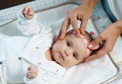 Bebeğinizin kafa şekil bozukluğuna dikkat