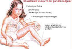Çocuklarda romatoid artrit