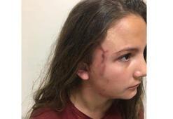 Çocuk parkında dehşet 12 yaşındaki kızı 6 kişi zor kurtardı