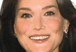 Carla Bruni botoks mu yaptırdı