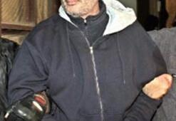 Rakibinin oğlunu ASİTTE ERİTEN 'baba' yakalandı