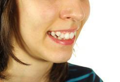 Çarpık dişlerden kurtulun
