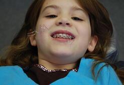 Çarpik diş sorununa dikkat