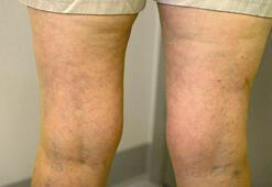 Bacaklardaki renk değişikliği ne anlama geliyor
