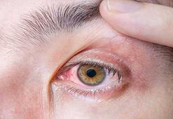 Göz hastalıklarını hafife almayın