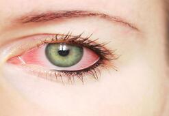 Göz kanlanması neden olur