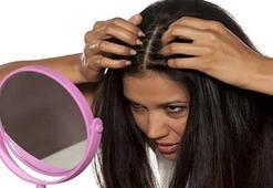 Saç nezlesi nedir, belirtileri nelerdir, nasıl tedavi edilir
