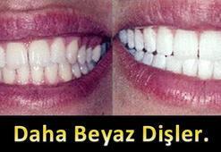 Beyaz dişler artık hayal değil