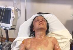 Geline kızgın yağ döktüğü iddia edilen kayınvalide serbest bırakıldı