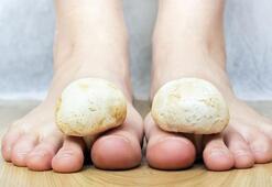 Ayak mantarına doğal tedavi