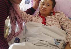 Kırgız kadın 35 gün sonra konuştu