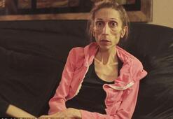 Anoreksik oyuncu ilk kez ayağa kalktı