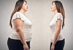 Tüp mide ameliyatıyla ilgili bilmeniz gerekenler