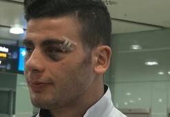 Romanyada Milli Takıma çirkin saldırı