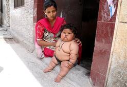 8 aylık bebek 17 kilo oldu