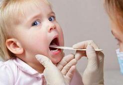 Çocuklardaki boğaz ağrıları beta habercisi