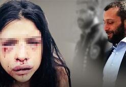 Melis Çakırın annesi: Onur Özbizerdik kızımı öldürecek