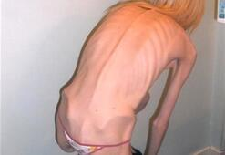Anoreksiya sonrası bu halde