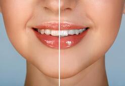 Diş taşı nedir