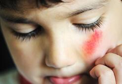 Çocuklara beş çeşit şiddet uygulanıyor